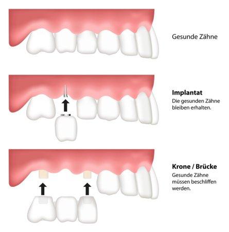 Vergleich Brücke Krone Implantat beim Zahnersatz