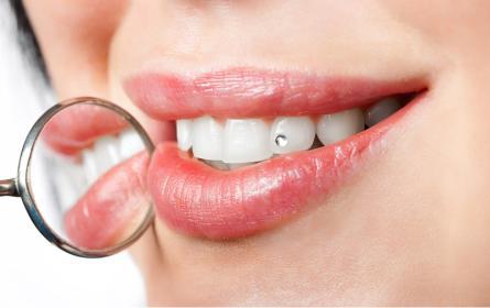 Zahnschmuck im Mund